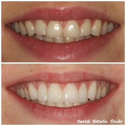 6 teeth