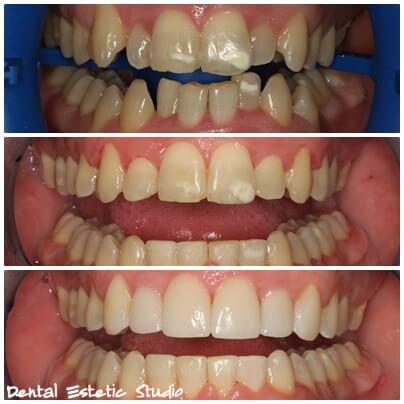 correction of the teeth