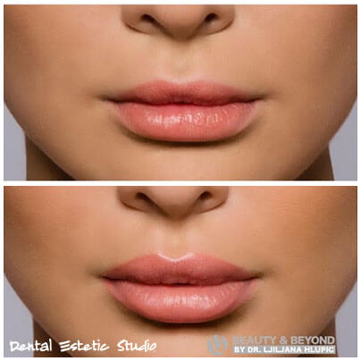 hyaluronic filler lips