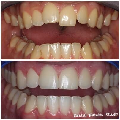 braces fixed teeth