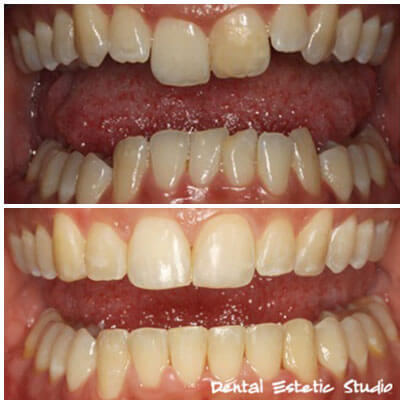 aesthetic dental braces