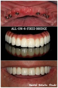 dental prosthetic