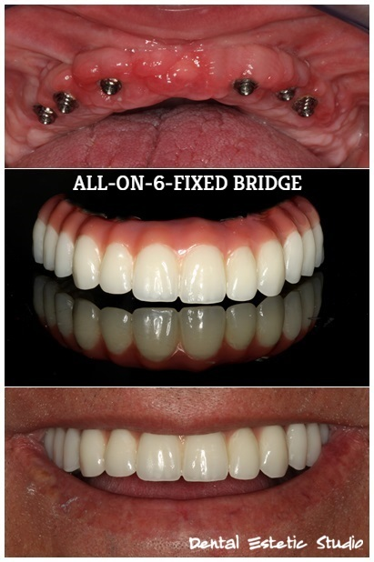Implantology - all on 6