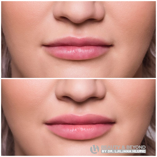 increased lips before and after